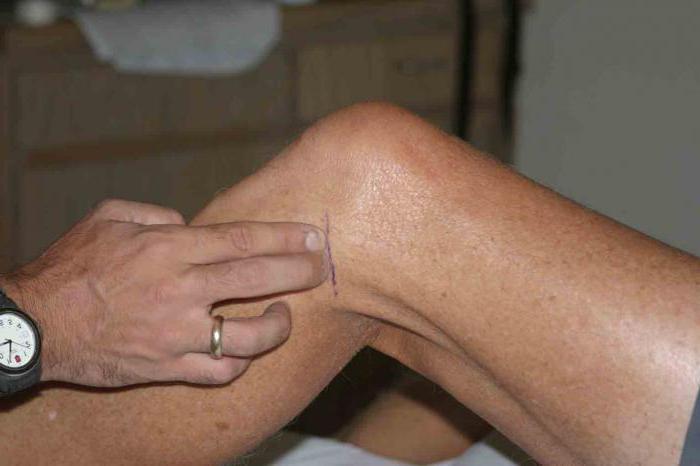 Болит сбоку от колена с внешней стороны что это