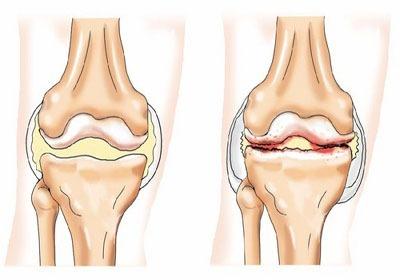 почему болят колени у женщин