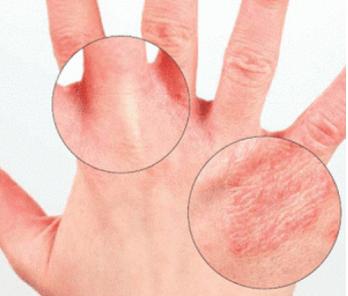 Боль в указательном пальце левой руки причины