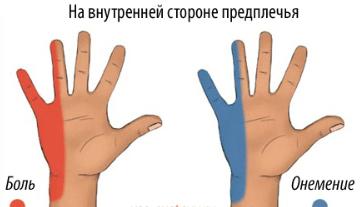болят и чувствуеться онемение в суставах пальцев рук