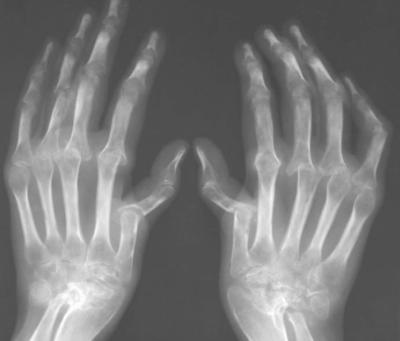 Болит средний сустав пальца руки