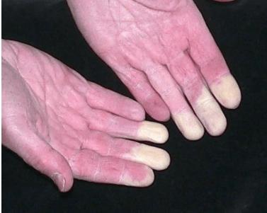 Болит средний палец руки и ноги thumbnail