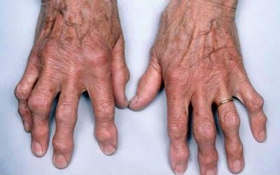 фото среднего пальца на руке