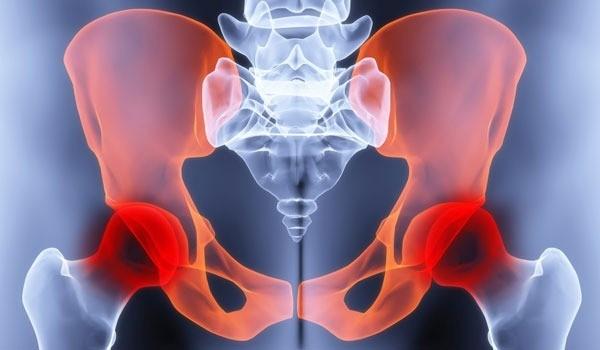Причины болей в тазобедренном суставе у беременных и как от них избавиться