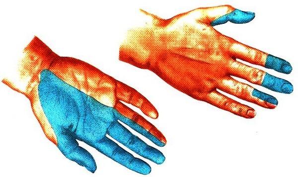 Невропатия срединного нерва руки лечение